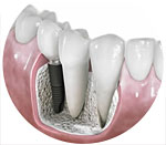 Implants in Grand Prairie Texas